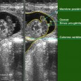 sexage foetus 64 jours